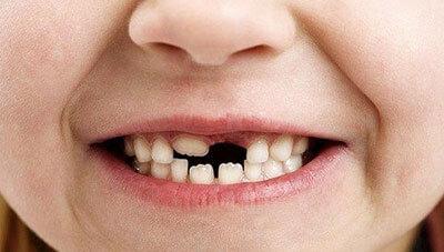 losing-teeth